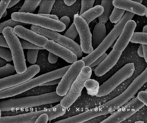 Escherichia coli E coli Kolibakterien Krankheiten